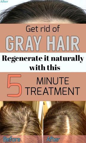 Get rid of gray hair and regenerate it naturally with this 5 minute treatment.