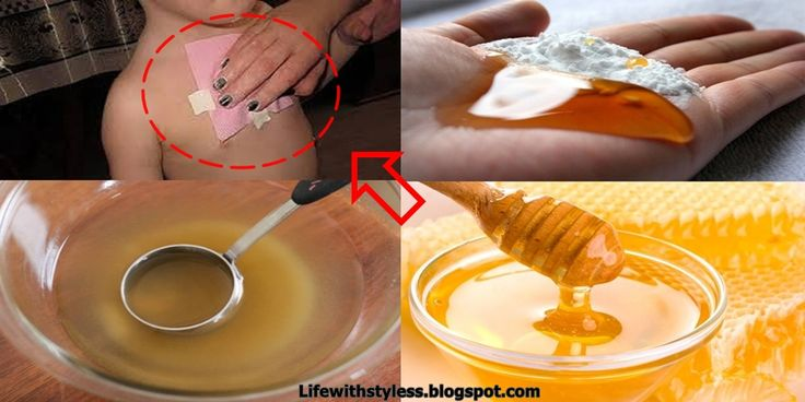 Honey-Wraps-–-Cures-Strong-Cough-And-Removes-Mucus-From-The-Lungs-In-Just-One-Night-Especially-Efficient-For-Children-vert-horz
