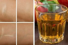 Tônico antioxidante para as rugas, queimaduras de sol e cicatrizes