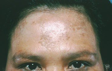 melasma on forehead-Melasma (muh-LAZ-muh) is a common skin problem. It causes brown to gray-brown patches on the face. Most people get it on their cheeks, bridge of their nose, forehead, chin, and above their upper lip. One of the most common treatments for melasma is sun protection. This means wearing sunscreen every day and reapplying the sunscreen every 2 hours. Dermatologists also recommend wearing a wide-brimmed hat when you are outside. Sunscreen alone may not give you enough…
