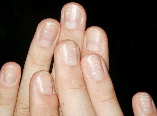 Info on your fingernails....