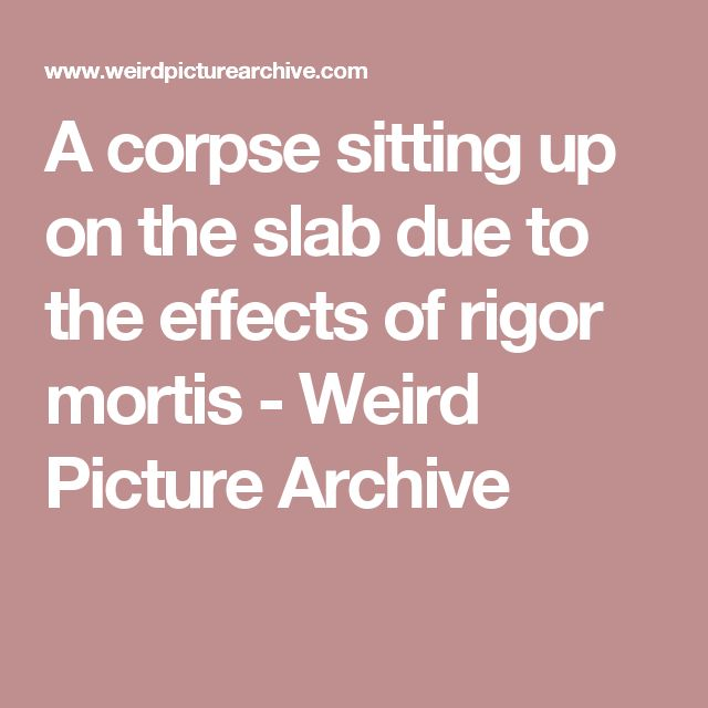 A corpse sitting up on the slab due to the effects of rigor mortis - Weird Picture Archive