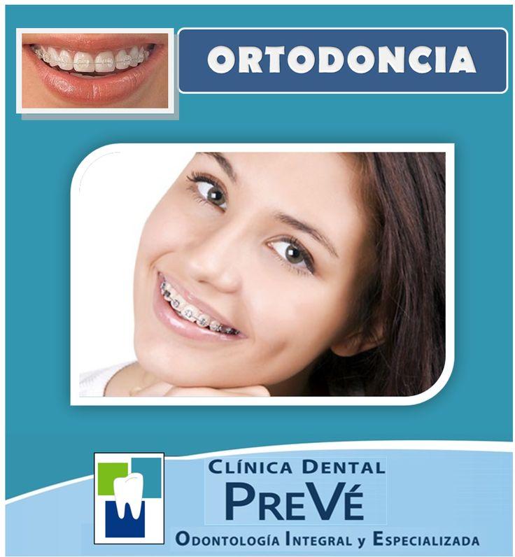 Alinea tus dientes con brackets, ya sean metálicos o estéticos