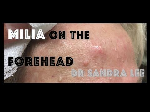 Milia extracted on the forehead