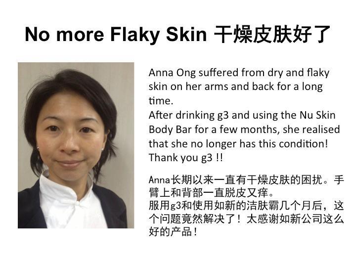 No more flaky skin.
