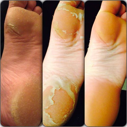 The Baby Foot treatment is the greatest, grossest beauty treatment ever.