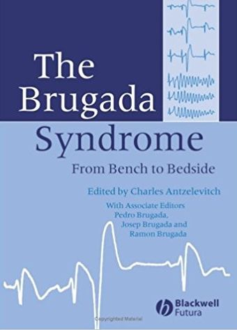 The Brugada Syndrome: From Bench To Bedside #medical #books #free #download #pdf #review #residency #clinical #india #online #textbooks #students #pictures #book #CardiologyBooksPDF #CardiologyBooks #Cardiology