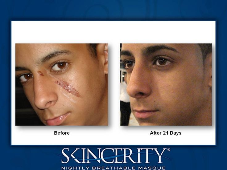BEFORE AND AFTER GALLERY | NuCerity CentralNuCerity Central