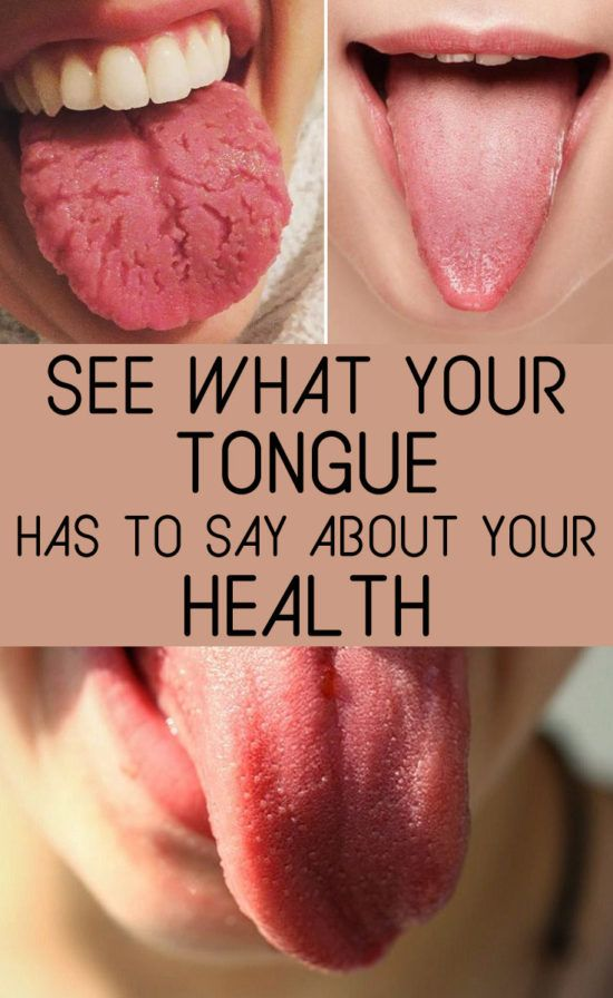 Tongue Health Diagnosis Lots Of Charts And Images   The WHOot