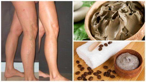 5 Naturmittel gegen Krampfadern - Besser Gesund Leben