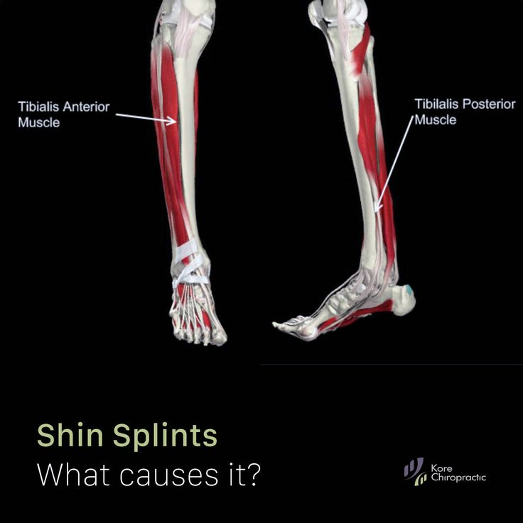 Research paper on shin splints nwt