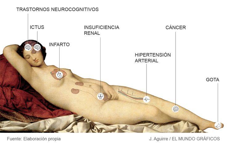 Apnea, una pesadilla que no sólo quita el sueño | Biociencia | EL MUNDO