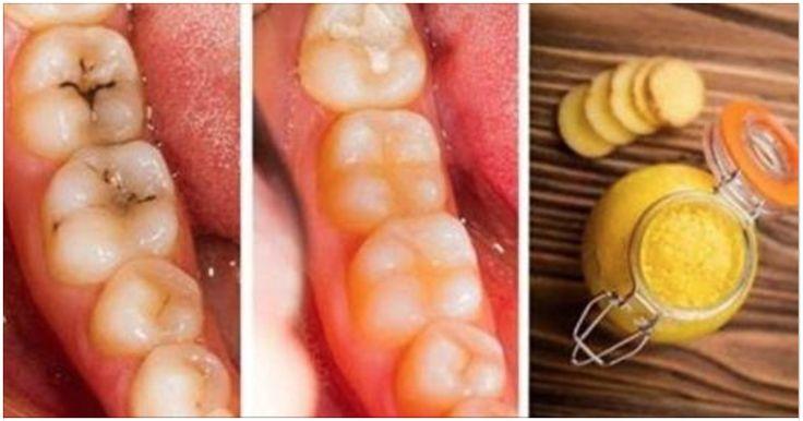 No hay nada más desagradable que tener problemas dentales, pues son muchas las personas que debido a una alimentación inadecuada, la falta de higiene bucal y no acudir periódicamente al odontólogo pueden producir serios daños en la dentadura.