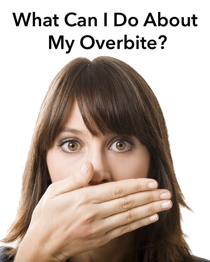 One of the most common reasons that people seek treatment with an orthodontist is the presence of an overbite. Fortunately, there are ways to correct an overbite. Read our blog for more information. #overbites #braces #orthodontics