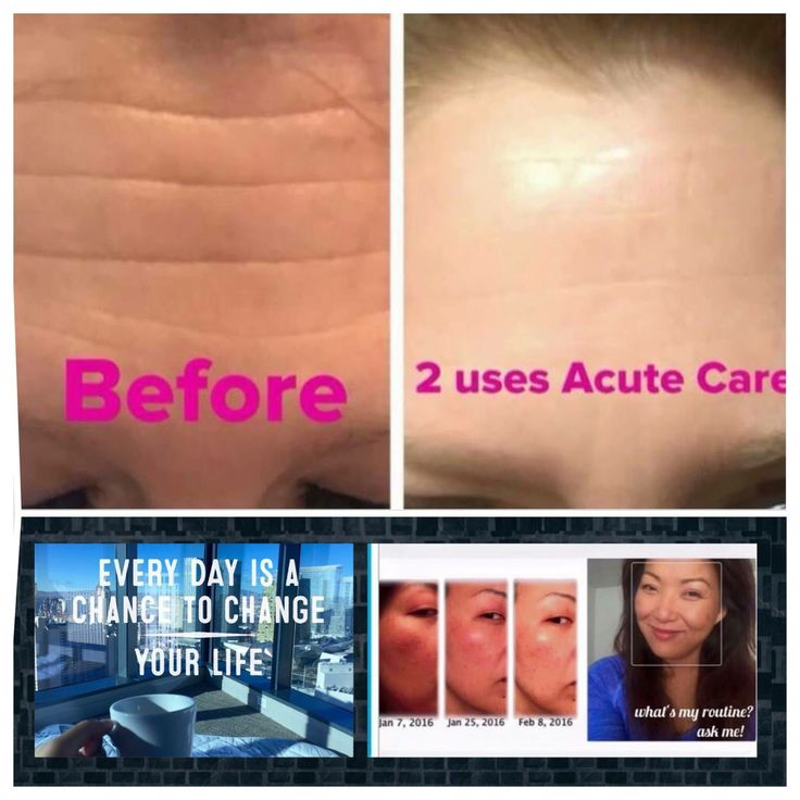 """Did you know...  You Can Smooth out wrinkles, while you Sleep, no Needles or Appt Necessary!??!?!  Redefine Acute Care smooths out your wrinkles while you sleep!  Each patch is filled with hyaluronic acid and peptides in solid form until it comes into contact with skin!  Once contact is made, it melts onto the skin and into the wrinkle!    What is hyaluronic acid and Peptides you're asking???   Hyaluronic Acid....Don't let the word """"acid"""" scare you, it's not harsh or skin-stripping!  Your…"""