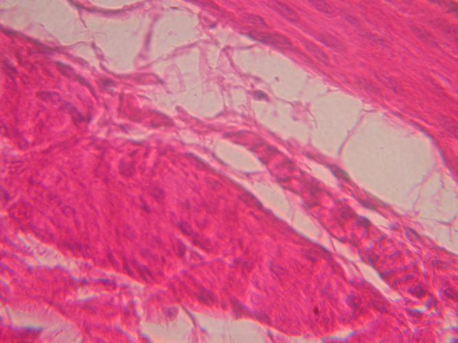O músculo liso  é formado por células longas e fusiformes com um único núcleo central. Estas fibras musculares estão dispostas em camadas na parede do tubo digestivo, vasos sanguíneos, útero, etc, sendo revestidas e unidas por uma rede delicada de fibras reticulares.