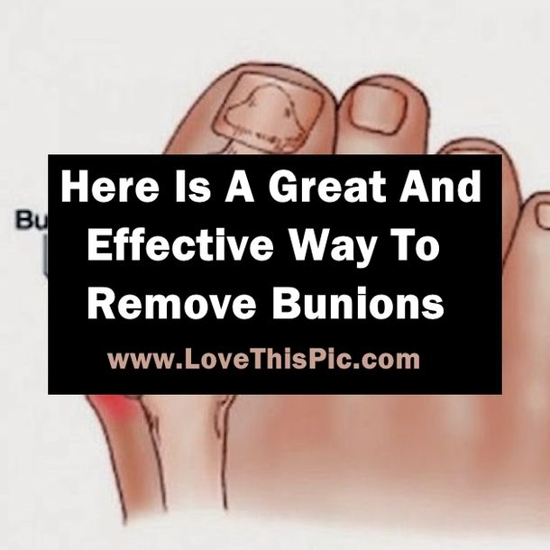 Here is some more information about Bunions and a unique and effective way to get rid of those painful bunions.