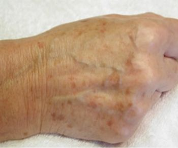 How To Get Rid Of Liver Spots - Vinegar & lemon juice regularly applied on skin directly have been found effective in permanently fading out liver spots. Apply w/cotton pad & leave on 15-20 min. rinse w/H2O