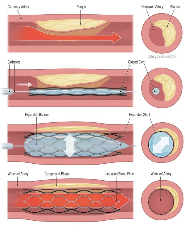 Percutaneous coronary intervention (PCI) | Bupa Heart Health Information Centre