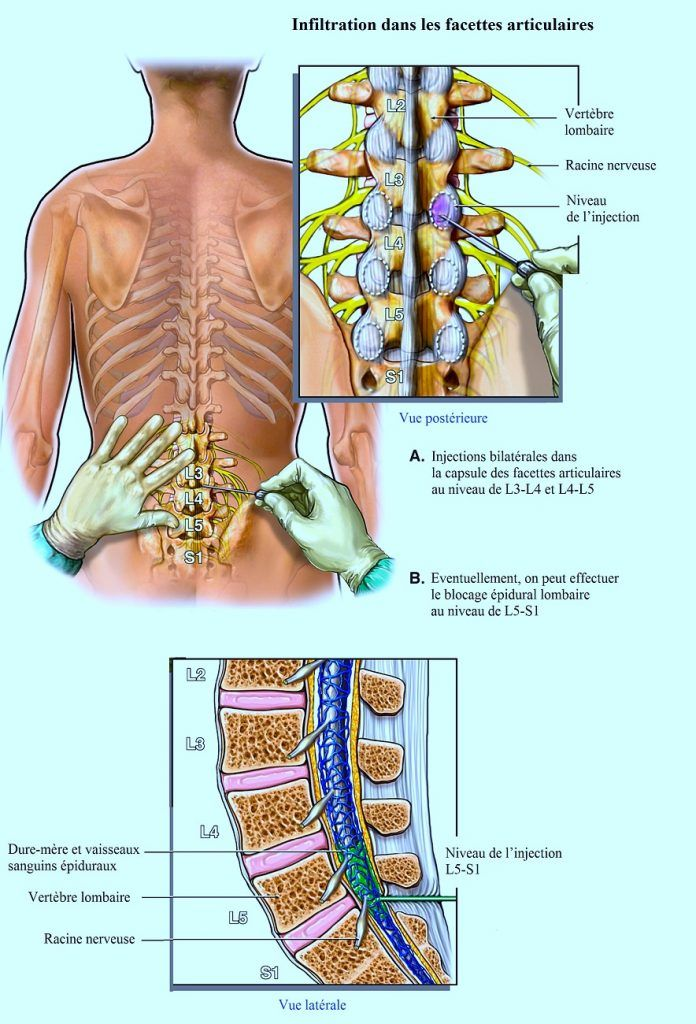 Que peut être malade à gauche sur le dos sous les côtes