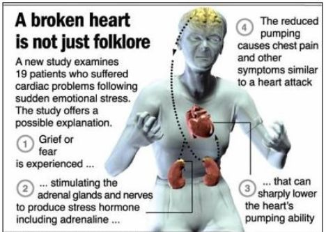 Broken Heart Symptoms | Broken Heart Syndrome Symptoms and Treatment | MyDocHub - Health News ...