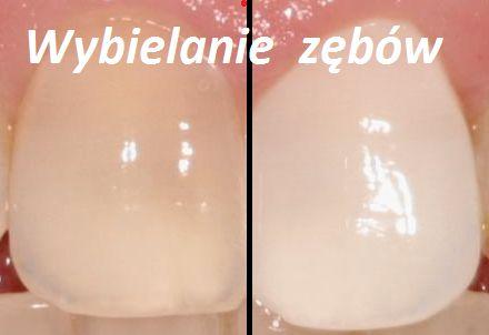 Domowy i sprawdzony sposób na wybielenie zębów: >> Składniki: - 1 łyżeczka sody oczyszczonej -pół łyżeczki pasty do zębów Przygotowanie: 1) Wymieszaj składniki i umyj tym zęby. Myj przez 15 minut. 2) Drugi sposób (lepszy i bardziej skuteczny) to nałożyć substancję na zęby i przeczekać 15 min.  ZĘBY BĘDĄ ŚNIEŻNO BIAŁE
