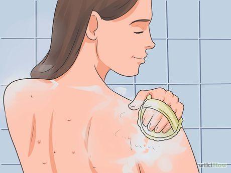 Imagen titulada Get Rid of Bacne Step 1