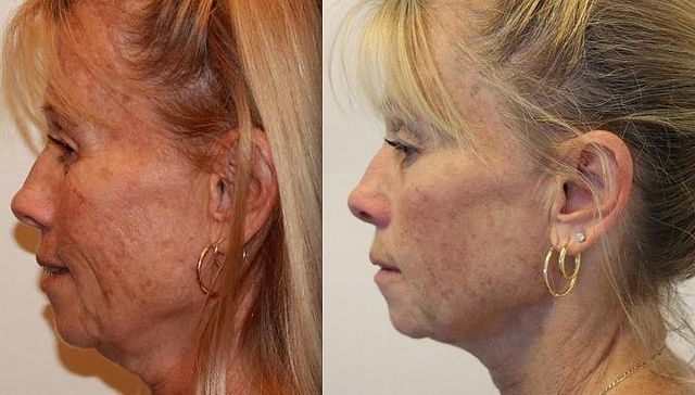 Acquire A More Younger Appearance Using Facial Massaging Workouts