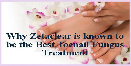 Zetaclear is the best toenail fungus treatment for treating any kind of toenail