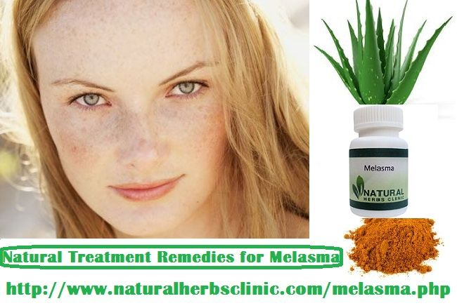 Melasma can be successfully cured with natural remedies that are simply accessible at home. Here is the best home remedy for melasma that treat the condition not including side effects that chemical peel, laser therapy and further such cosmetic treatments may cause. Natural Treatment for Melasma can treat with aloe vera mostly available at home.... https://naturalcureproducts.wordpress.com/2017/03/30/melasma-treatment-at-home/
