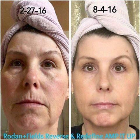 "I *love* sharing results like these with you, my friends! Eva says, ""I am so excited and floored at my 5 month results using Rodan + Fields Premium Skincare Products!!! You can have amazing results just like me. You have nothing to lose and everything to gain!"" Eva's results were achieved using REVERSE in the AM and REDEFINE in the PM, in conjunction with the Amp MD Roller!"