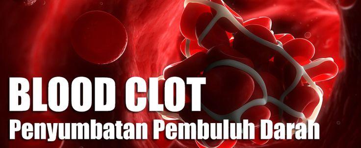 Penyumbatan Pembuluh Darah - Obat Jantung dan Stroke