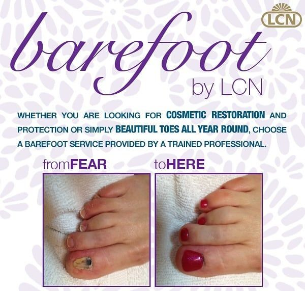 We Are Your Barefoot Service Provider Ready To Restore Your Toes Hit The Book Now Button A Freshstepsmedispa Waterl Toe Nails Nail Salon Beautiful Toes