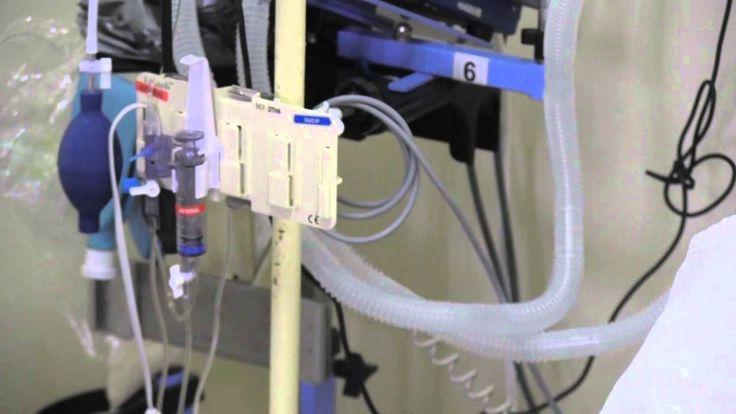 Como efectuar la monotorización de la presión venosa central (PVC)
