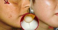 Obličejové skvrny zmizí během několika sekund! Zkuste tento domácí recept!