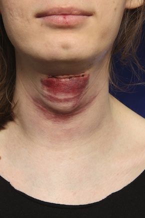 Adam S Apple Facial Feminization Surgery And Belgium