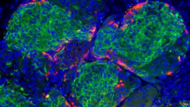 Zespół naukowców z Uniwersytetu Harvarda, którym kieruje prof. Dough Melton, poinformował o ogromnym kroku naprzód w syntezie komórek beta trzustki. Zespołowi udało się opracować skuteczną metodę transformacji embrionicznych komórek macierzystych w całkowicie sprawne komórki beta trzustki. Komórki te wszczepione myszom odwróciły całkowicie cukrzycę...
