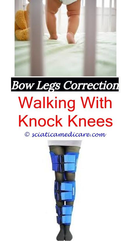 how to correct bow legs essay Cosmetic correction (bow legs correction) is done surgically by experienced orthopedic surgeons using a genuine method of deformity correction at this stage a slow correction of the legs shape occurs which lasts for a few days usually, correction starts on the 5th-7th day after the operation.