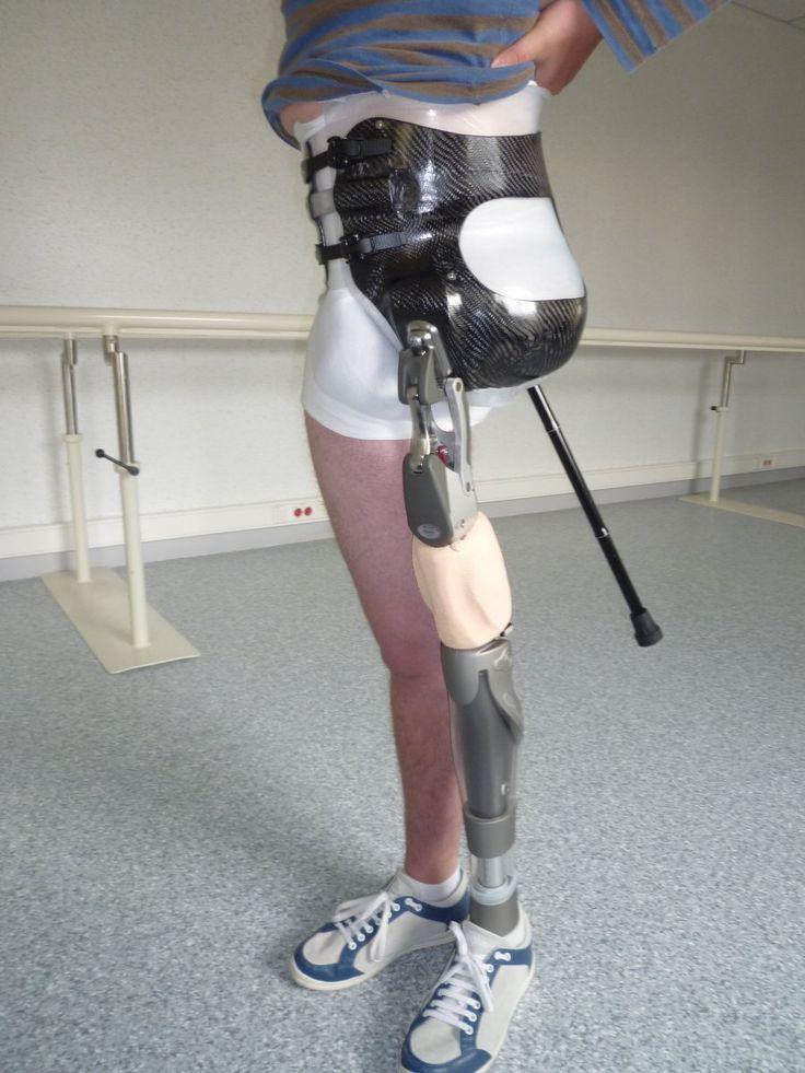 Prothèse de hanche   Bagnarosa Orthèses Prothèses Technologies