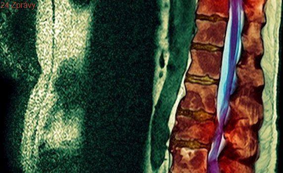 Trápily mě bolesti nohou. Lékaři odhalili nádor na křížové kosti