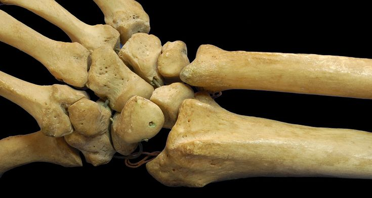 "Carpal bones in the human hand. This visually shows the forearm bones (ulna and radius) connecting to the carpal bones at the base of the hand (wrist.) The finger bones extend from the carpals. The name for the finger bones is ""meta carpals"" for the lower bones and ""phalanges"" for the finger tips. #joints"