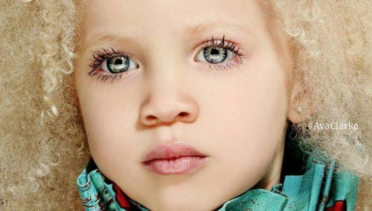 Ava Clarke una una niña afroamericana albina.