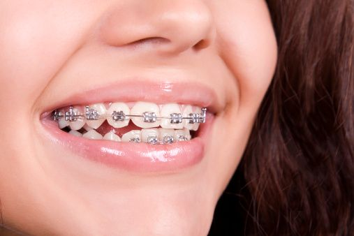 1000 id es sur le th me orthodontic treatment sur for Appareil detartrage dentaire maison