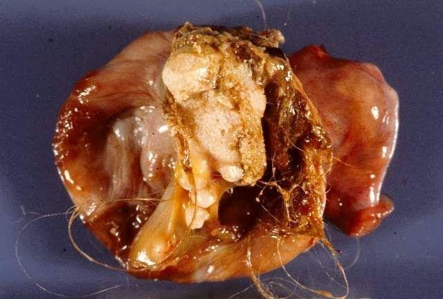 Dermoid Cyst With Teeth