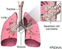Your In-Depth Guide to Squamous Cell Carcinoma of the Lungs