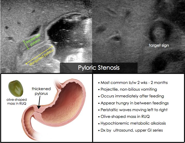Pyloric Stenosis.  String sign on US or upper GI series.