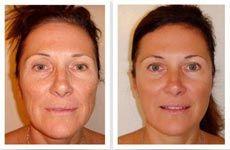 La revolucionaria fórmula antiarrugas de Sébastien Beaudine borra las arrugas completamente en sólo 22 días