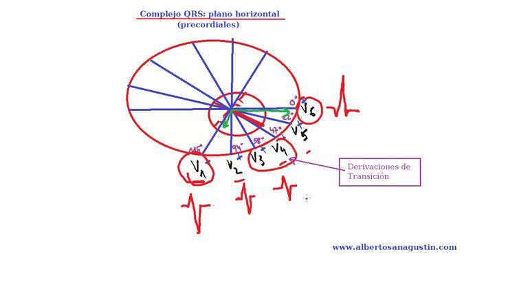 ECG normal (15): Complejo QRS en derivaciones precordiales. #electrocardiograma http://www.albertosanagustin.com