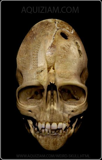 Dropa Skeletons Google Search Ancient Archiology