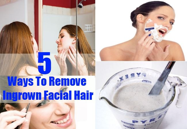 Do You Know How To Reduce Ingrown Facial Hair?